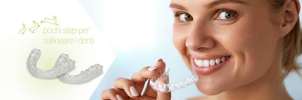 ortondonzia invisibile studio dentistico federico fedele